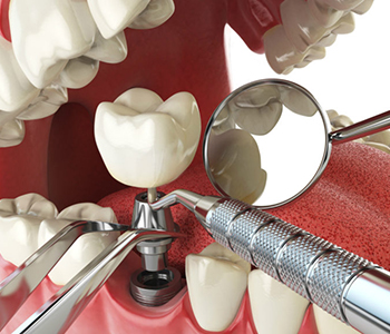 "Beverly Hills area dentist Dr. Moldovan Sanda, answers, ""Can dental implant be done in one day?"""