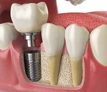 Save your smile with dental implants from a Beverly Hills implant dentist, Dr. Moldovan Sanda.