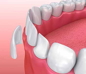 How long do porcelain veneers last, check what Dr. Moldovan Sanda at Beverly Hills Dental Health and Wellness says.