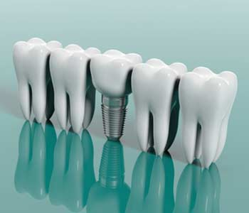 Why Are Dental Implants Becoming So Popular in Beverly Hills area