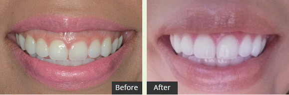 Gummy Smile Laser Reduction