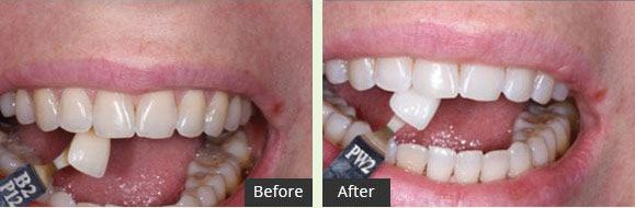 Laser Whitening Treatment
