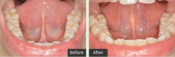Tongue Frenectomy