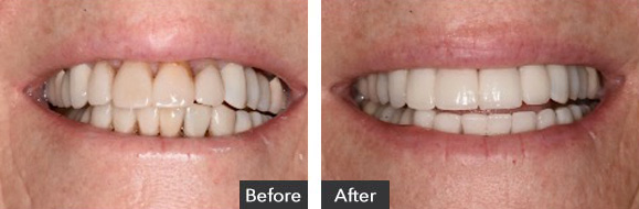 Porcelain Veneers, Dental Implants and Porcelain Crowns