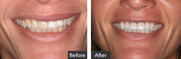 Before and After Veneer and Implant Crown
