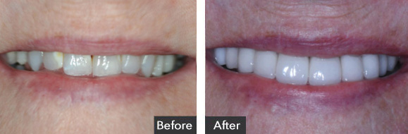 Before and After Full Mouth Rehab Treatment