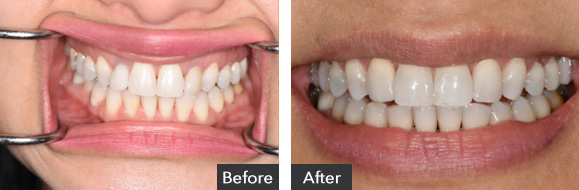 Upper Anterior Ceramic Implants - Before and After