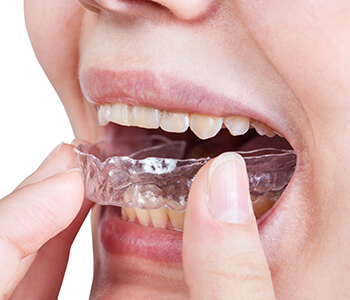 Discuss Night Guards for Dental Conditions Such as Bruxism with Beverly Hills, California Area, Dentist