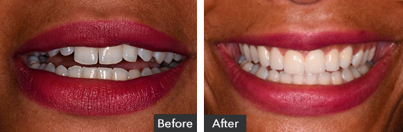Veneers before after results Beverly Hills, CA